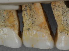 Homo luzonesis teeth