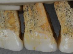 Homo luzonesis teeth
