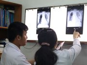 Chinese doctor's lungs